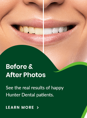 Before & After Photos | Hunter Dental | Markham Dentist